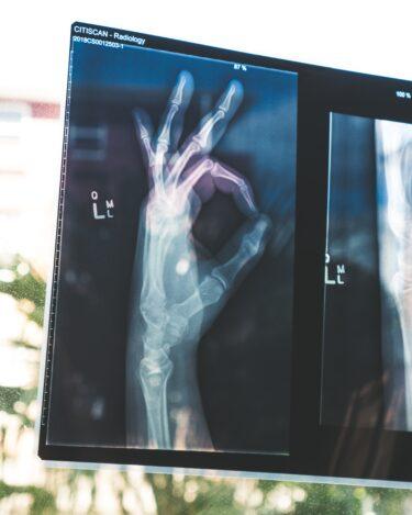 骨折体験談 プレート固定は脛骨だけ 腓骨はそのままだった【写真付き】